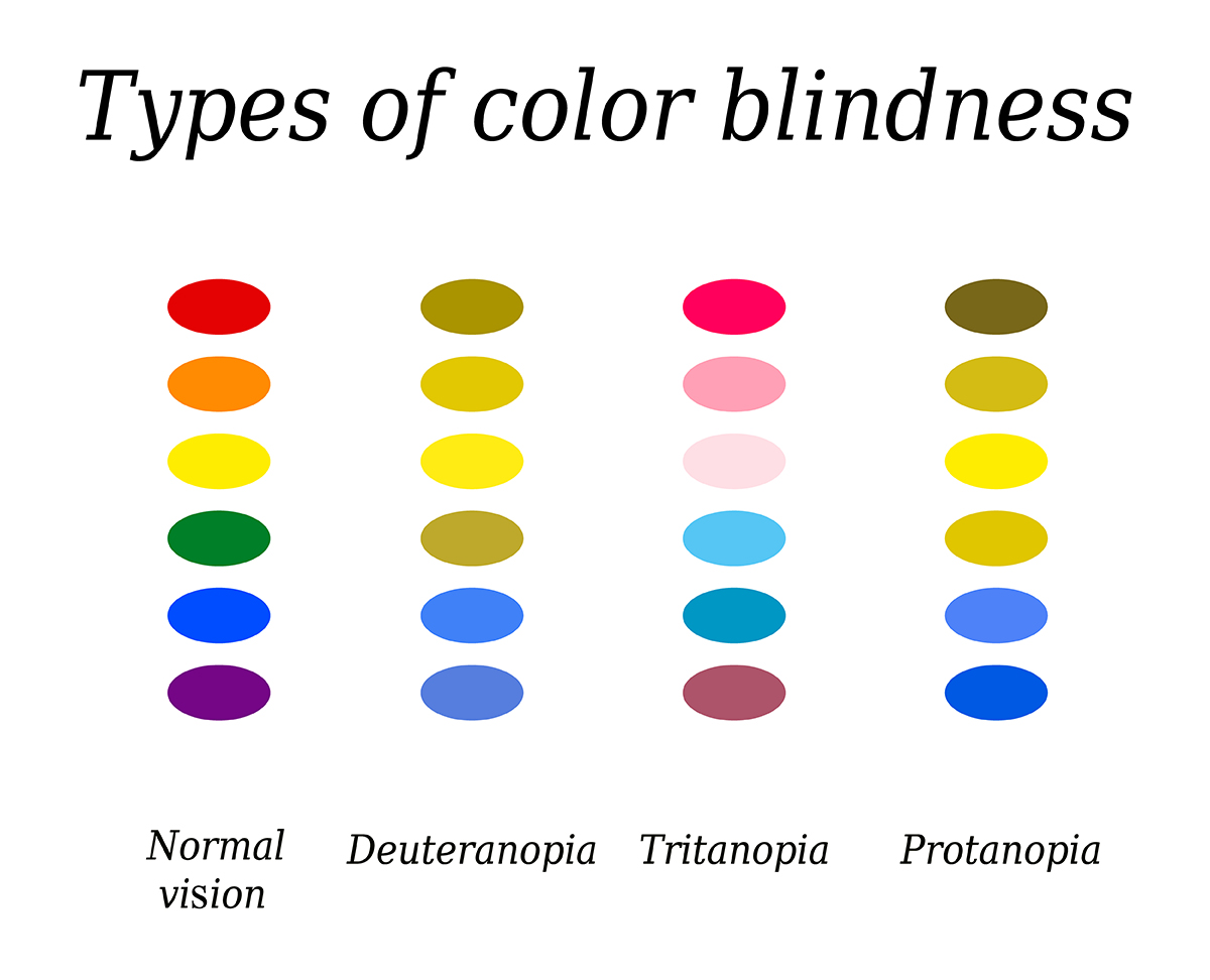 Types of color blindness. Eye color perception. Vector illustration on isolated background.